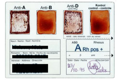 blood typing test